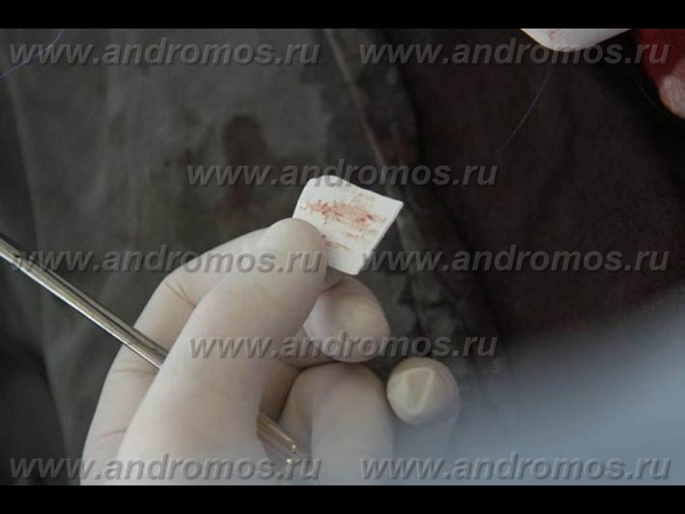 Санаторий в украине для лечения астмы
