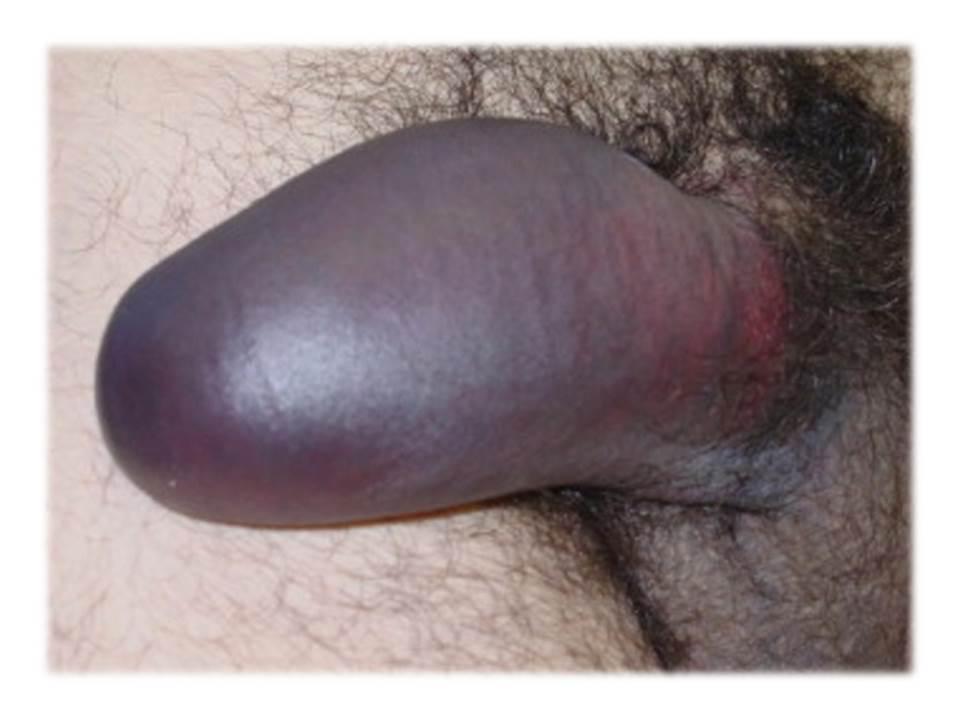 Разрыв пениса фото 4 фотография